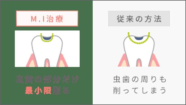 M.I治療 虫歯の部分だけ最小限削る、従来の方法 虫歯の周りも削ってしまう