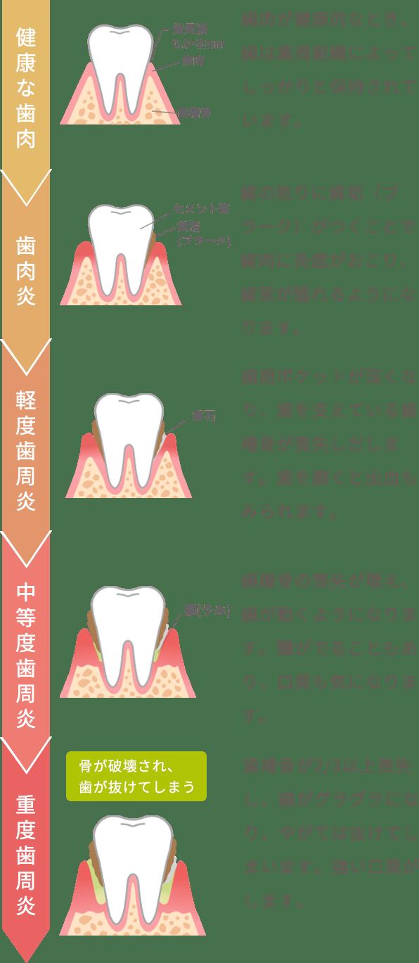 健康な歯肉 歯肉が健康的なとき、歯は歯周組織によってしっかりと保持されています。、歯肉炎 歯の周りに歯垢(プラーク)がつくことで歯肉に炎症がおこり、歯茎が腫れるようになります。、軽度歯周炎 歯周ポケットが深くなり、歯を支えている歯槽骨が喪失しだします。歯を磨くと出血もみられます。、中等度歯周炎 歯槽骨の喪失が増え、歯が動くようになります。膿がでることもあり、口臭も気になります。、重度歯周炎 歯槽骨が2/3以上喪失し、歯がグラグラになり、やがては抜けてしまいます。強い口臭がします。